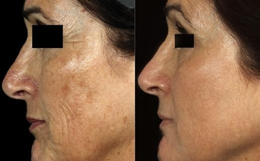 Fountain Laser Skin Clinic